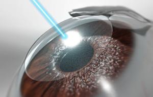 جراحة-العين-بالليزك