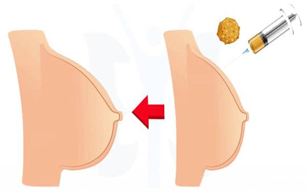 تكبير-الثدي-الدهون-الذاتية