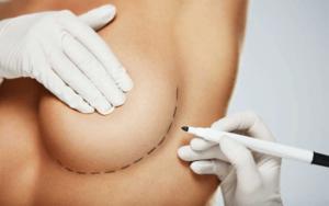 جراحة-تجميل-الثدي