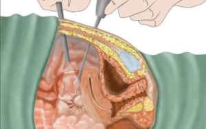 عملية-استئصال-الرحم