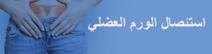 استئصال -الورم- العضلي