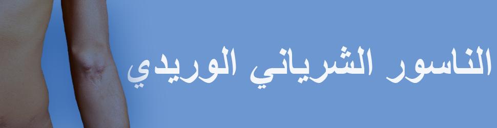 الناسور-الشرياني-الوريدي