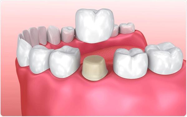تاج-الأسنان-في-تونس