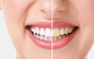 تبييض-الأسنان-في-تونس