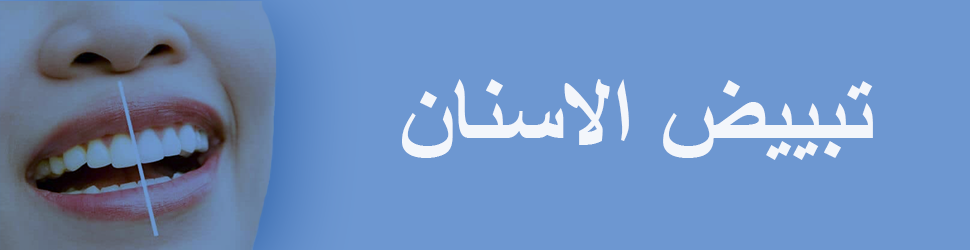 تبييض-الاسنان-في-تونس