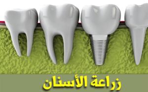 تكلفة-زراعة-الاسنان-في-تونس