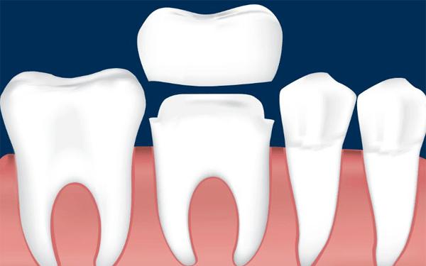 تونس-تيجان-الأسنان
