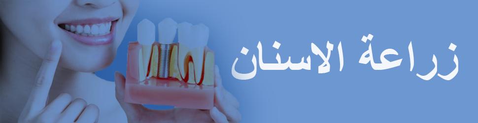 زراعة -الاسنان-في-تونس
