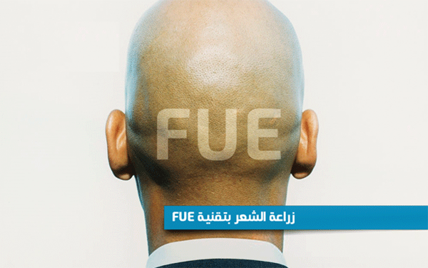 زراعة-الشعر-بتقنية-FUE-تونس