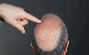 زراعة-الشعر-في-تونس