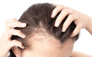 زراعة-الشعر-للنساء-في-تونس