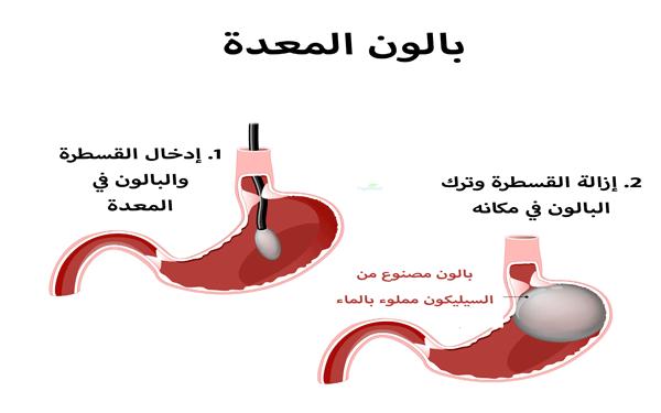 عملية-بالون-المعدة-تونس