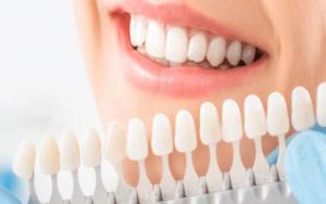 قشور-الأسنان-تونس
