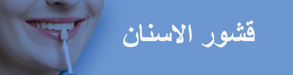 قشور-الاسنان-تونس