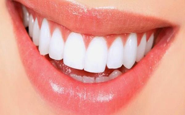 كيفية_تبييض_الأسنان-تونسً