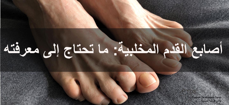 أصابع-القدم-المخلبية