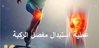 استبدال-مفصل-الركبة