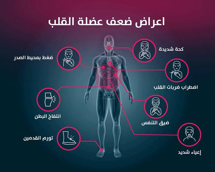 اعراض-ضعف-عضلة-القلب