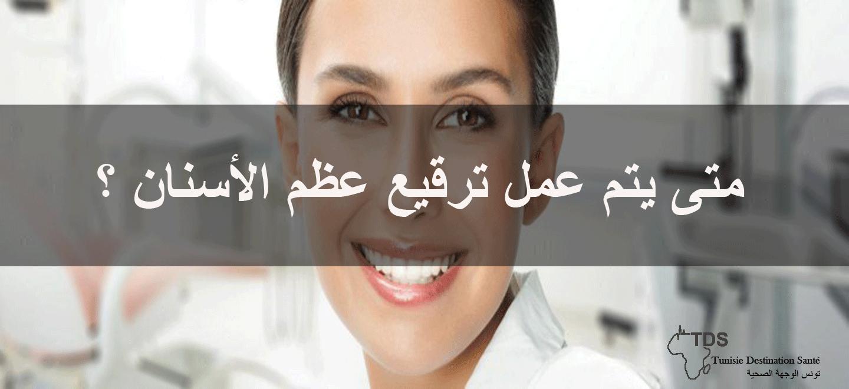 ترقيع-عضام-الأسنان