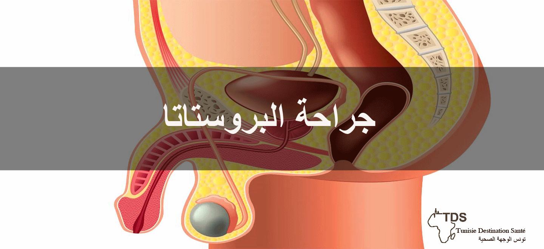 جراحة-البروستات
