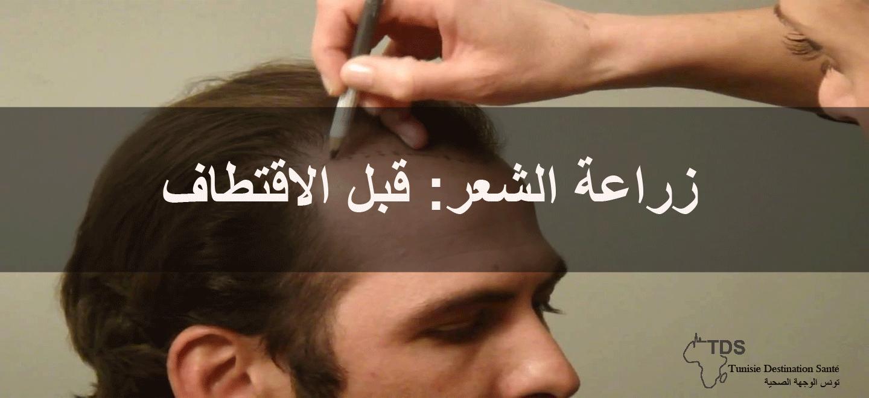 زراعة-الشعر-قبل-الاقتطاف