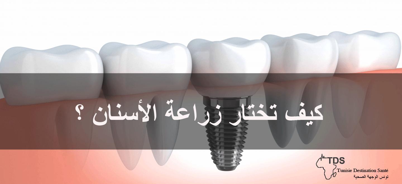 كيف-تختار-زراعة-الأسنان