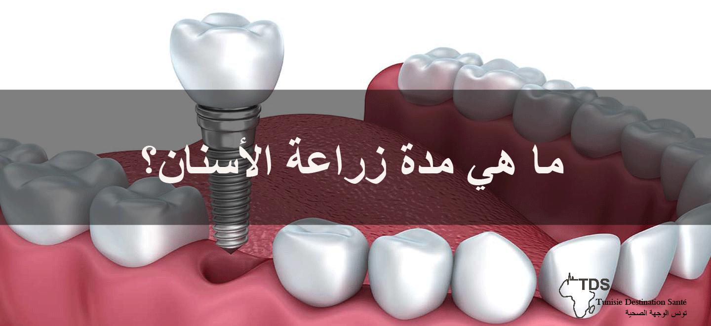 مدة-زراعة-الأسنان