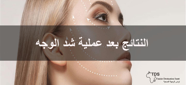 نتائج-عملية-شد-الوجه